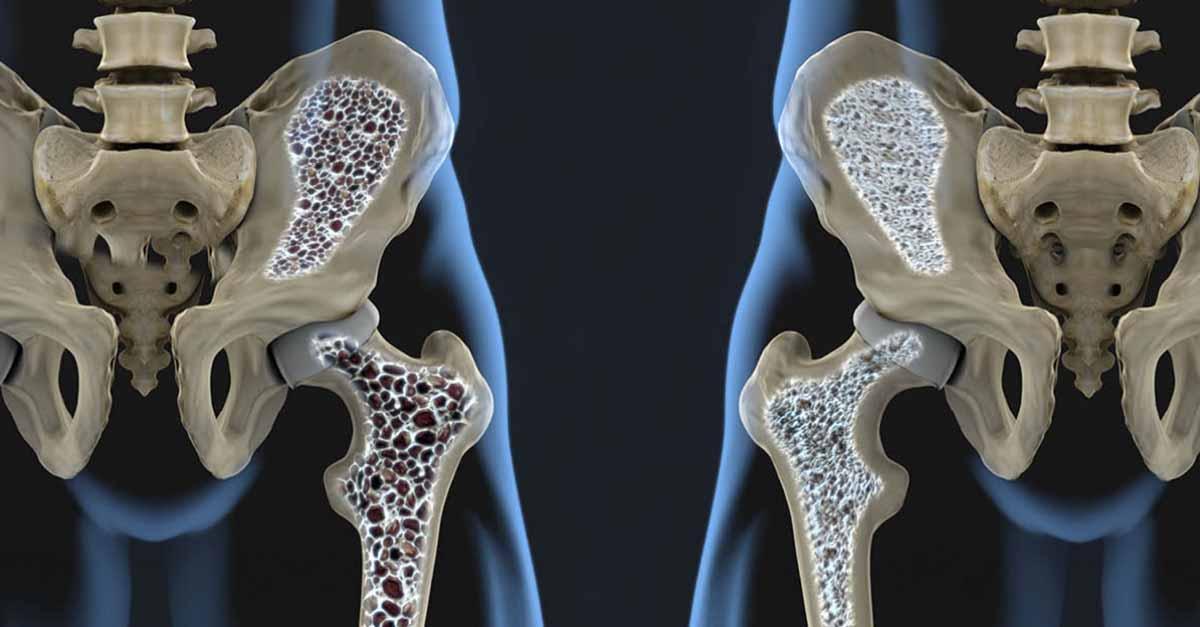 esercizio fisico, cancro al seno e fragilità ossea 3