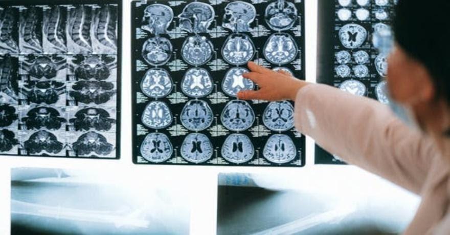 La riabilitazione cognitiva nei pazienti oncologici